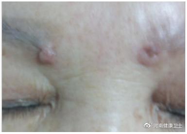 眉头增生困扰六年多 郑东美眼医疗建议做鉴定
