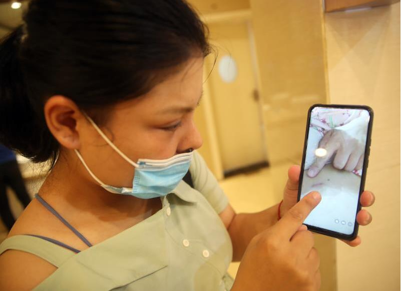女子鼻部整形术后鼻孔一大一小?郑州天后医疗美容医院:鼻孔轻度不对称属正常反应